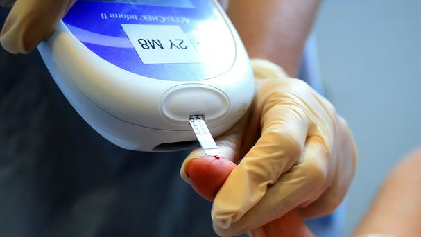 The outcome of their exhaustive and innovative research has the potential to change the lives of hundreds of millions should it reverse the effects of Type 2 diabetes. Photo: PA