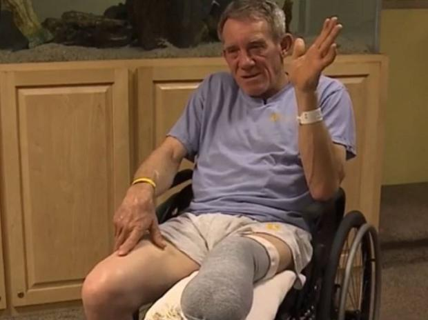 Kurt Kaser, 63, amputated his own leg with a pocket knife after it became trapped in a grain hopper on his isolated farm in Nebraska, US. KETV