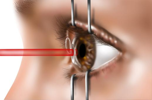 Laser eye surgery first came to Ireland in the late 1980s