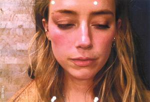 A photo shown in court from May 2016 of Amber Heard which has been referred to as an exhibit in the hearing (Handout/PA)