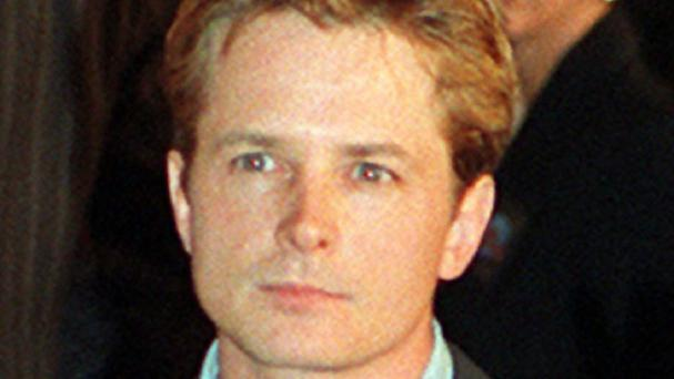 Actor Michael J Fox starred in Teen Wolf