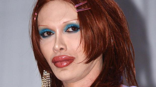 Pete Burns died on Sunday after suffering a cardiac arrest