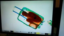 The figure of an eight-year-old boy is seen inside a suitcase on a Spanish civil guard scanner screen at the border between Morocco and Spain's north african enclave Ceuta, Spain in this handout photo released May 8, 2015. A 19-year-old woman was arrested May 7, 2015 for the attempted smuggling of the boy, who was checked by medics and handed over to juvenile prosecutors office, according to authorities. Picture taken May 7, 2015. REUTERS/MINISTERIO DEL INTERIOR/Handout via Reuters   ATTENTION EDITORS - THIS PICTURE WAS PROVIDED BY A THIRD PARTY. REUTERS IS UNABLE TO INDEPENDENTLY VERIFY THE AUTHENTICITY, CONTENT, LOCATION OR DATE OF THIS IMAGE. NO SALES. NO ARCHIVES. FOR EDITORIAL USE ONLY. NOT FOR SALE FOR MARKETING OR ADVERTISING CAMPAIGNS. THIS PICTURE IS DISTRIBUTED EXACTLY AS RECEIVED BY REUTERS, AS A SERVICE TO CLIENTS. NO COMMERCIAL USE.       TPX IMAGES OF THE DAY