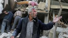 An injured man gestures amid rubble after what activists say were four air strikes by forces loyal to Syria's President Bashar al-Assad in Douma, eastern al-Ghouta, near Damascus. Reuters