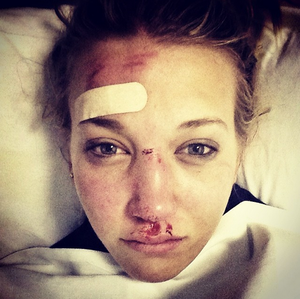 Rowan Chesire posted this image on her instagram account following her fall