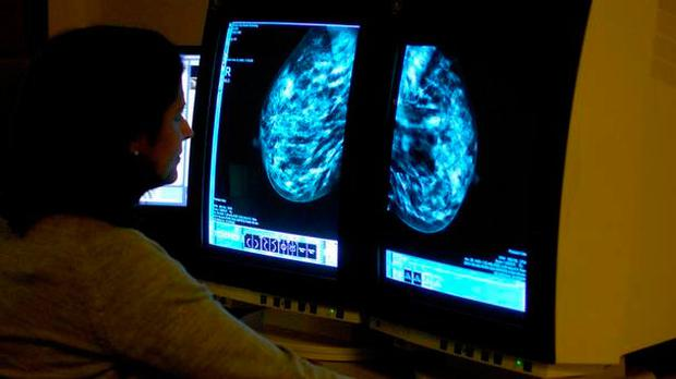 The timeline to provide cancer patients, who are already diagnosed with the disease, with radiotherapy treatment in 15 days is also being missed in nearly a third of cases. Stock Image