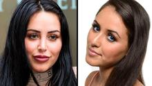 Marnie Simpson, before and after plastic surgery