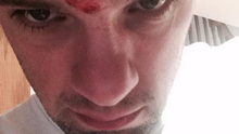 Bressie tweeted: 'The sea gulls got me. We are in a war people'. Photo: @nbrez