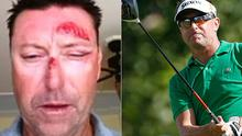 Battered and bruised: Robert Allenby was kidnapped and beaten in Hawaii.