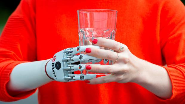 Nicky Ashwell, the UK's first patient to receive a lifelike bionic hand, holds a glass of water at the offices of the London Prosthetic Centre, Kingston, West London. PRESS ASSOCIATION Photo. Picture date: Tuesday June 16, 2015. Ms Ashwell, 29, from London, can now carry out tasks with both hands for the first time, but said it is the little things she can now do that surprise her the most, such as being able to carry her purse at the same time as holding her boyfriend's hand. See PA story HEALTH Hand. Photo credit should read: Laura Lean/PA Wire