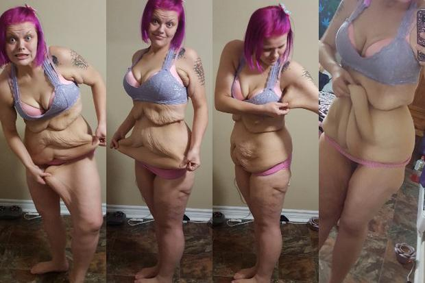 Kayla said that the excess skin on her stomach, arms and thighs is preventing her from being truly confident in her body.