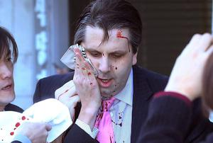 The American Ambassador to South Korea, Mark Lippert, is taken to hospital after being attacked by a razor-wielding man. Photo: AP Photo/Yonhap, Kim Ju-Sung