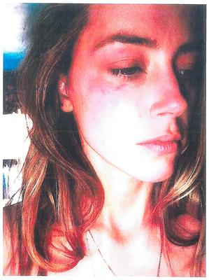 Amber Heard shows her injuries. Photo: Reuters