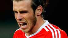 """Bale suffered a """"traumatic dislocation of the peroneal tendons"""" during a Champions League encounter with Sporting Lisbon in November. Photo: Reuters / Matthew Childs"""