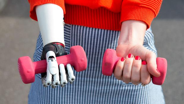 Nicky Ashwell, the UK's first patient to receive a lifelike bionic hand, holds weights at the offices of the London Prosthetic Centre, Kingston, West London. PRESS ASSOCIATION Photo. Picture date: Tuesday June 16, 2015. Ms Ashwell, 29, from London, can now carry out tasks with both hands for the first time, but said it is the little things she can now do that surprise her the most, such as being able to carry her purse at the same time as holding her boyfriend's hand. See PA story HEALTH Hand. Photo credit should read: Laura Lean/PA Wire