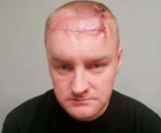 Paul Fleming shows his wounds after he was shot by the UDA