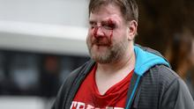A Trump supporter is injured after sides clash at a rally for President Donald Trump at Martin Luther King Jr. Civic Center Park in Berkeley Photo: (Dan Honda/East Bay Times via AP)