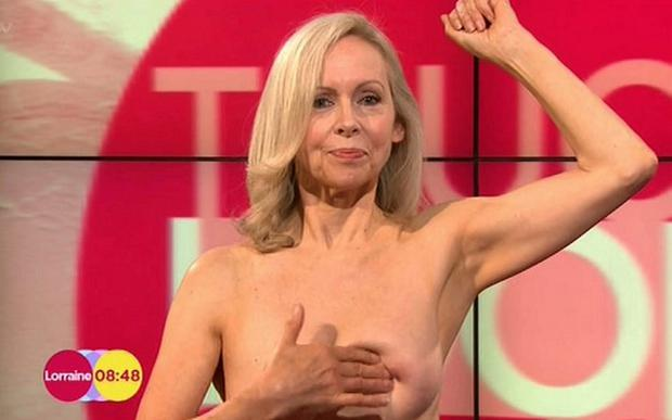 Model Sue appeared topless as part of a demonstration to educate women how to examine their breasts for abnormalities that may indicate breast cancer on early morning breakfast show Lorraine, presented by Lorraine Kelly