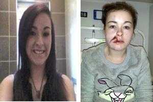 Nicole Dwyer from Wexford town, who was hit with a hatchet in her home on Monday; Nicole before (left) and after the attack.