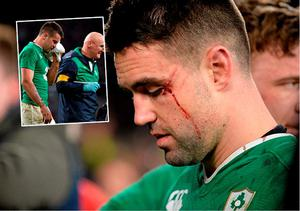 Conor Murray needed stitches after clash with Mike Brown