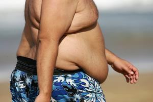 The problem of obesity has no single or simple solution. Stock image