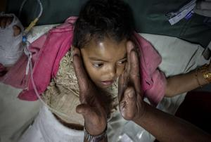 Sabita Nepal who was brought by helicopter to Bir Hospital, Kathmandu, Nepal is held with in her Grandfather Ombchabur Thjipa hands Pic:Mark Condren