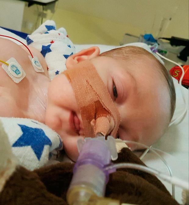Doctors can withdraw life-support treatment from the baby with a rare genetic condition against his parents' wishes, a High Court judge has ruled