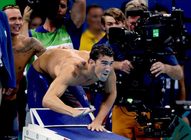 Michael Phelps had the red marks on his right shoulder last night