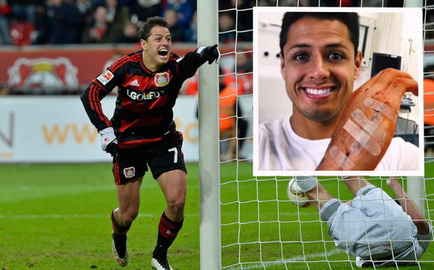 Javier Hernandez faces two weeks out after injuring his hand CREDIT: GETTY IMAGES