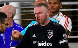 D.C. United forward Wayne Rooney is assisted on the sideline after getting injured