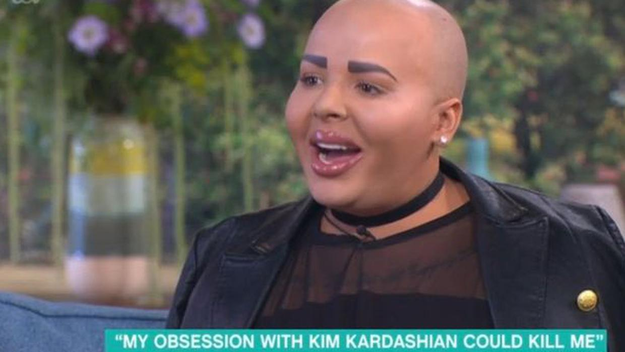 Kim Kardashian 'lookalike' wants more surgery even after fillers nearly  kill him - Independent.ie