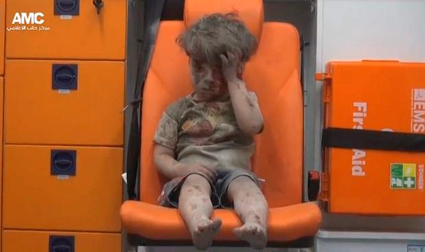 A photograph of five-year-old Omran Daqneesh has since been seen around the world. Photo: Reuters