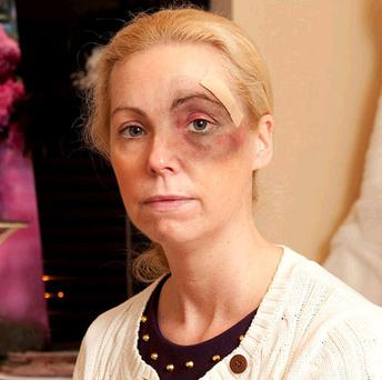 Regina Sweeney, who was assaulted at her home for a second time last night