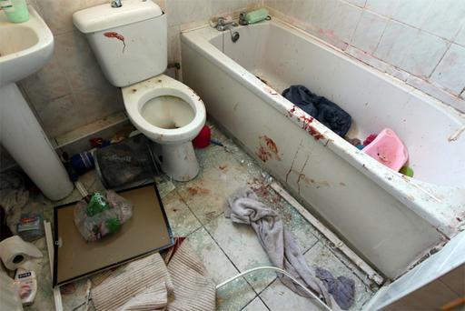The bloodsoaked bathroom where a garda was slashed in the face with a razor blade
