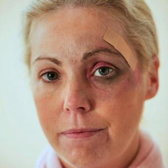 Regina Sweeney, shortly after she was attacked the first time.