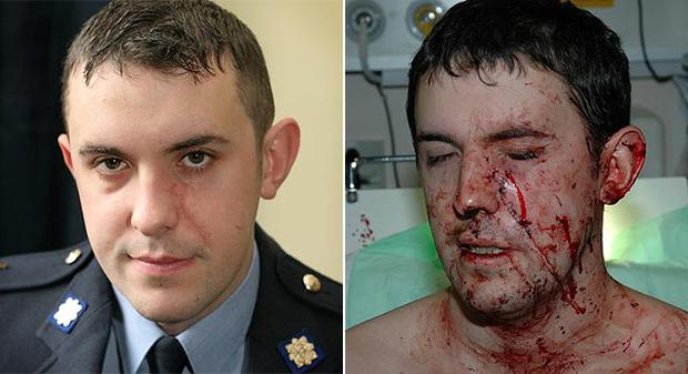 Gda Jeffrey White needed 30 stitches after being hit with a broken bottle