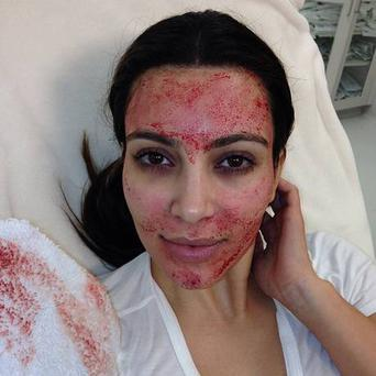 Kim Kardashian posted this photo to Instagram after having a Vampire Facial and derma roller treatment