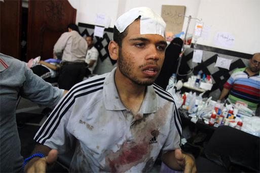An injured man stands in a makeshift hospital after Egyptian soldiers and police opened fire on supporters of the ousted President Mohammed Morsi early Monday in Cairo