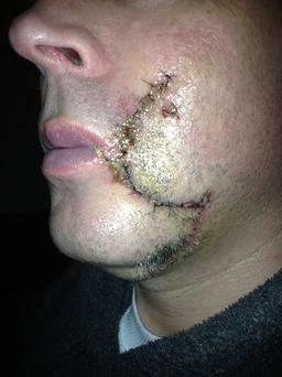 The attack left Jimmy Griffin with a horrific scar (picture courtesy Jimmy Griffin)