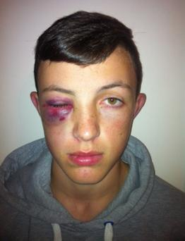 Seamus Doyle O Droigneain after he was assaulted