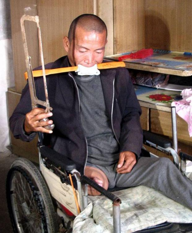Zheng Yanliang demonstrates the tools he used to amputate his legs