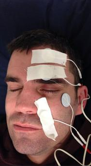 Boxer Bernard Dunne in a pic he posted on his Twitter account - the former world champion told how he has Bell's Palsy and is pictured undergoing treatment