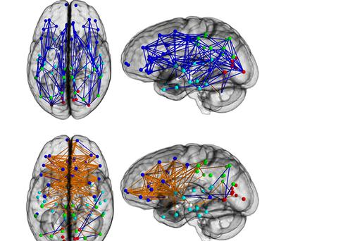 An image showing the significant differences in brain activity.