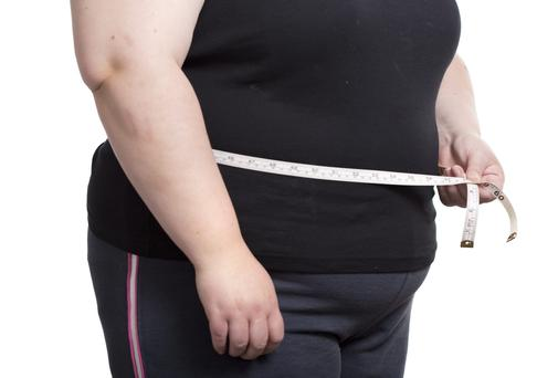 Children whose parents have divorced are more likely to be obese, new research suggests
