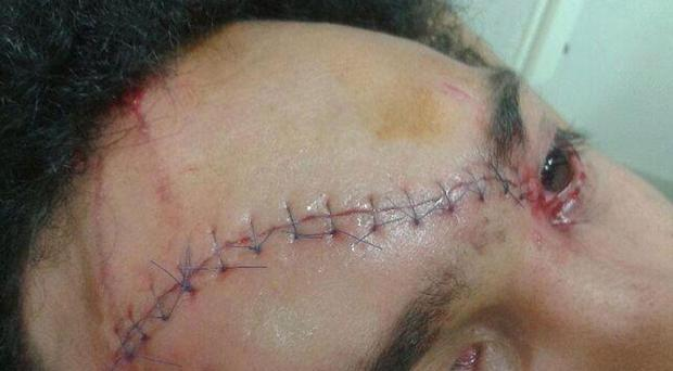 The head injury Richard Haughton suffered against Munster