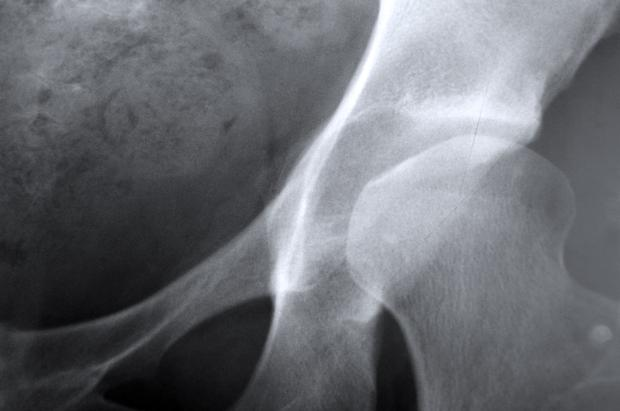 X-ray depicting osteoporosis of the hip joint