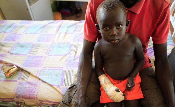 A child with a gunshot wound to his hand rests on his father's lap