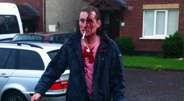 Alan Hewitt suffered horrific wounds to his head and arms