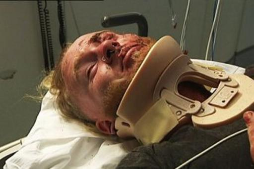 A young Irishman suffered head injuries following a vicious attack in the popular Australian tourist mecca Bondi Beach. Dwayne Casey was assaulted and punched on Campbell Parade causing him to strike his head on the pavement