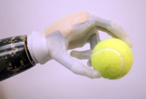 An artificial arm fitted to a patient